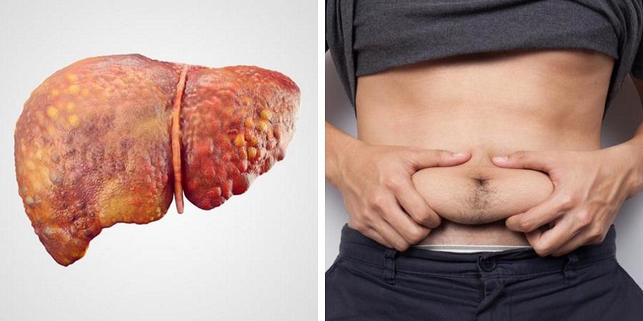 با نشانههای «کبد چرب»، شایعترین بیماری کبدی آشنا شوید