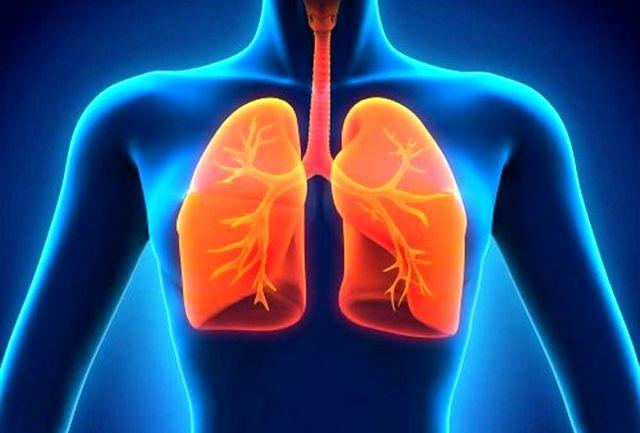 عفونت ریه و کرونا و درمان ان